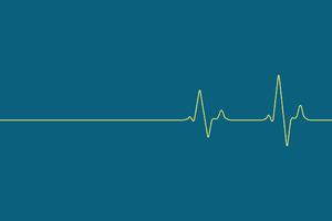 Music Heartbeat Wallpaper